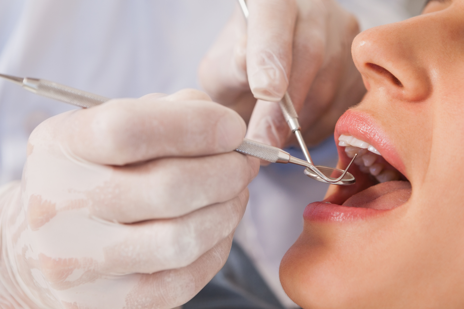 Cosmetic Dentistry in University Area, Charlotte, NC