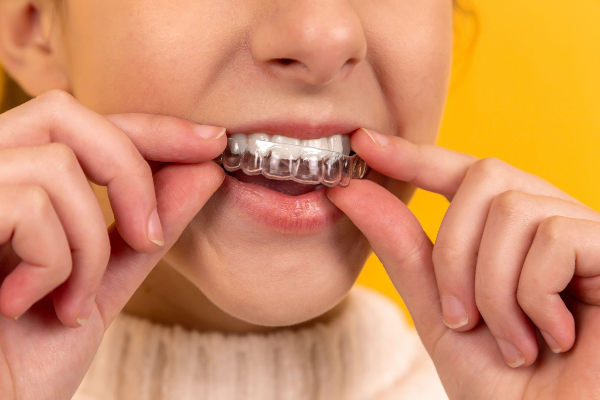 Winning Smiles Family & Cosmetic Dentistry offers custom-fitted mouthguards in the University Charlotte area